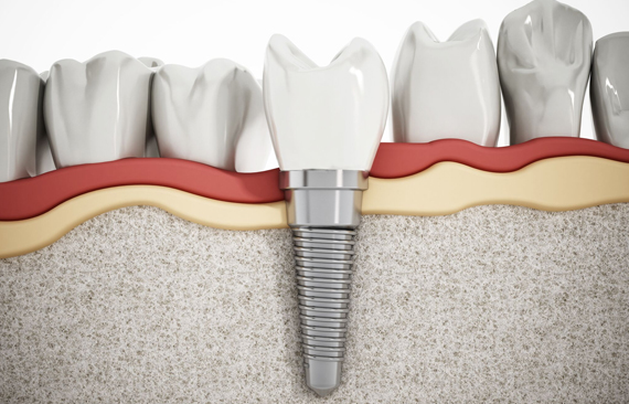 Dental Implants Are A Great Way To Improve