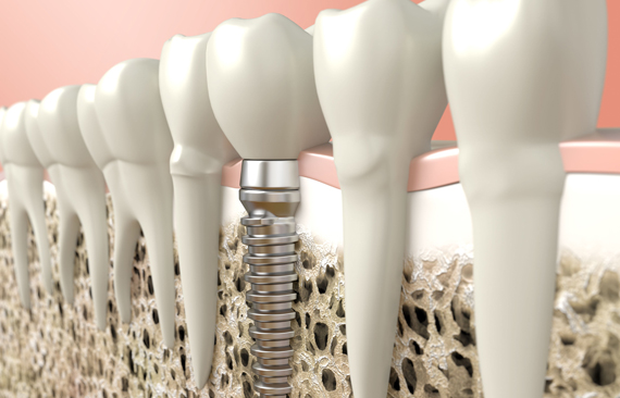 Dental Implants Are Typically Made Of Titanium