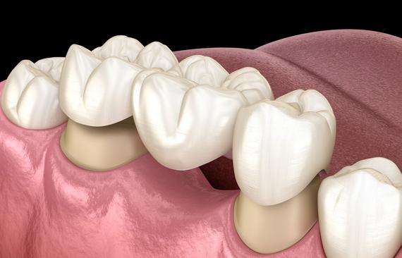What Are Dental Bridges