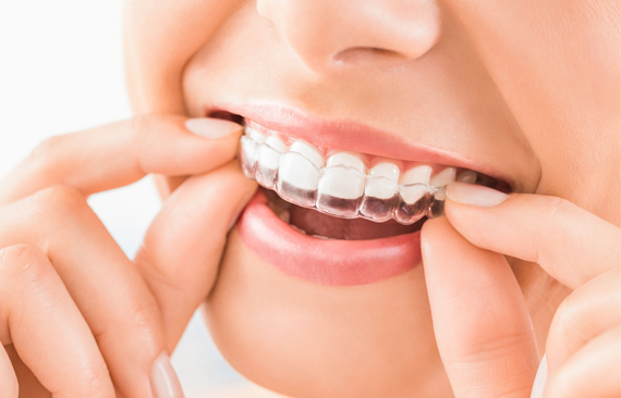 What Are Invisalign Or Clear Aligners