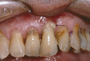 Periodontal Diseases – A Full Guide