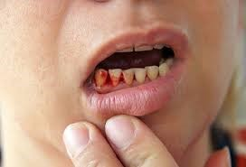 Teeth Experience Gum Infections