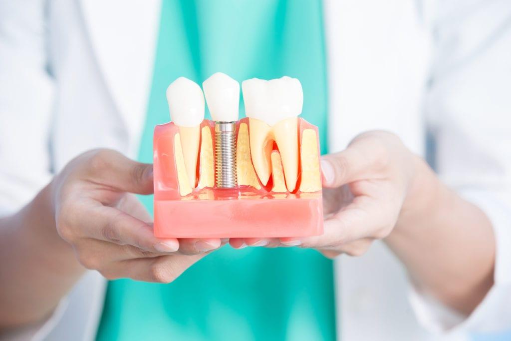 dental implants bedford tx dentist