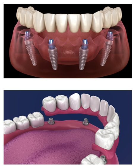 dental implants types - dentist bedford tx