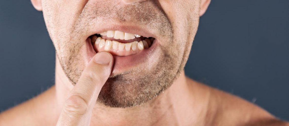 Man Touching Sore Gum